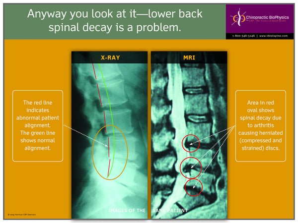 Lumbar X-Ray vs. MRI Disc Herniation