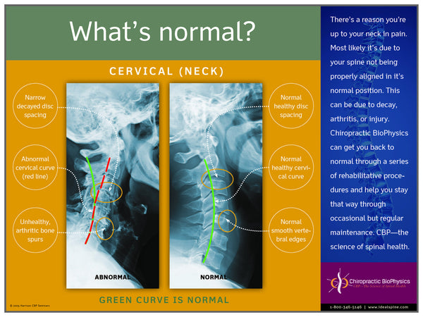 Normal vs. Abnormal Cervical X-Ray