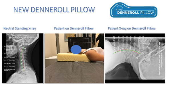 The Denneroll Pillow