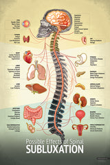 """Subluxation"" Spine Chart"