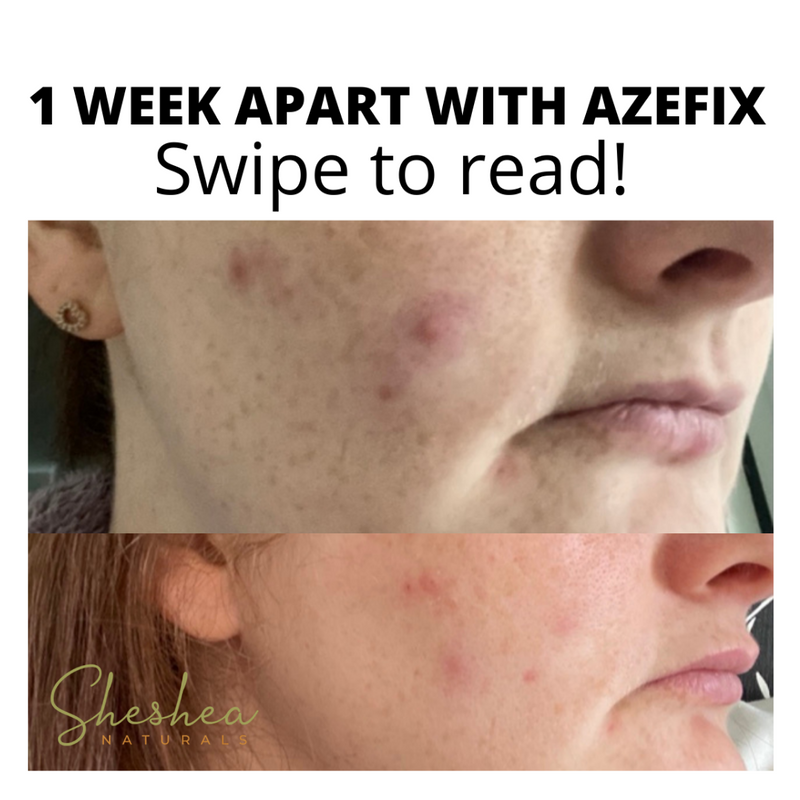 Azefix - Azelaic Acid Treatment Gel