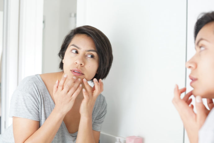 11 Common Causes For Adult Acne And Blemishes
