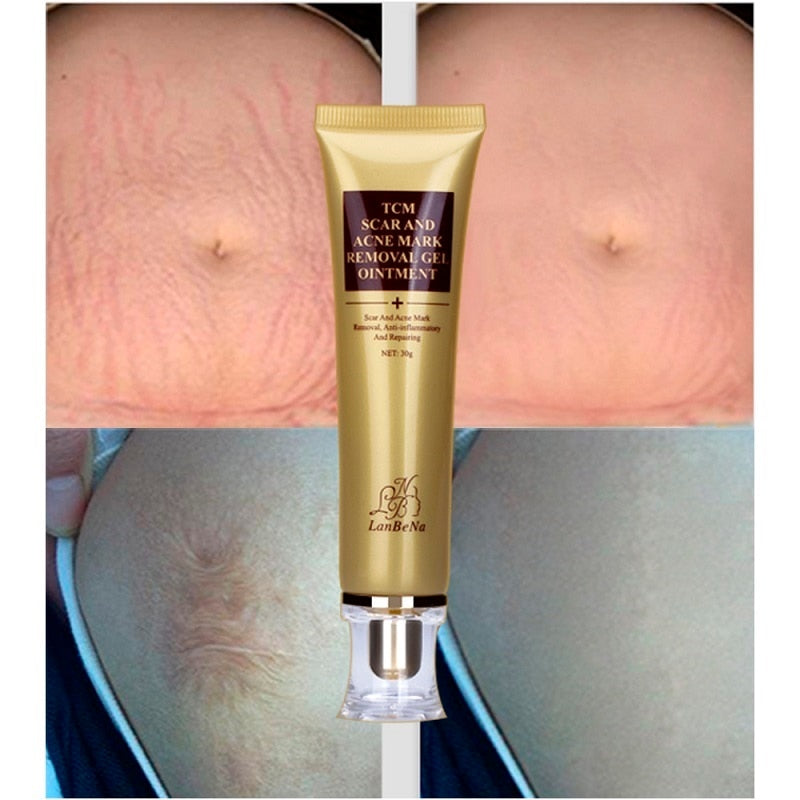 Acne Scar Removal Cream The Vanity Shop