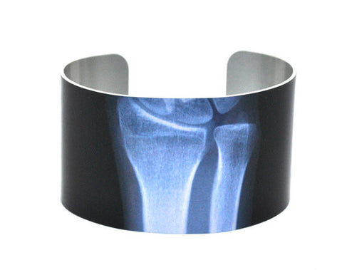 X-Ray of Wrist Aluminium Cuff