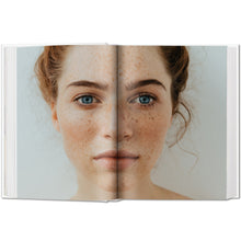 Load image into Gallery viewer, Freckles