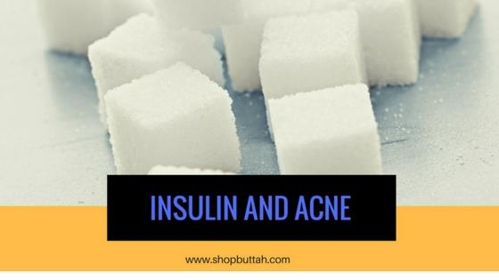 Insulin and Acne
