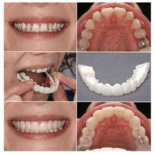 Load image into Gallery viewer, Perfect Smile Snap On Braces