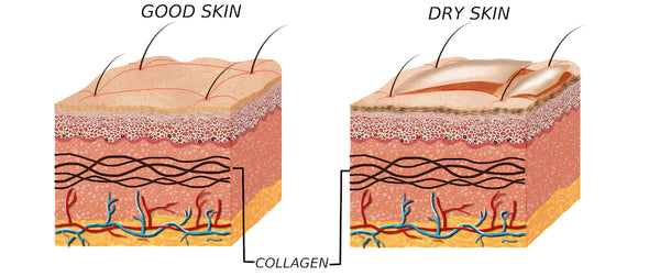 dry skin compared to healthy skin