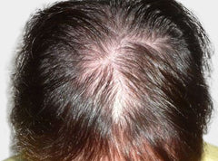 Boost n Blend hides visible scalp for hair loss in women