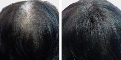 Boost n Blend for thinning hair in women fibres Eliza before and after