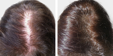 Boost n Blend volumising microfibres hair thickening for women Janet before and after