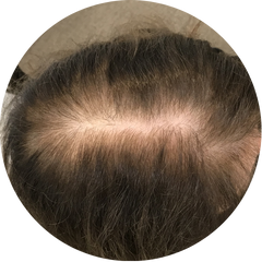 Image shows hair loss in a female