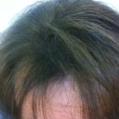 Boost n Blend hides visible scalp for hair loss in women Janelle after