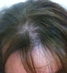 Boost n Blend hides visible scalp for hair loss in women Janelle before