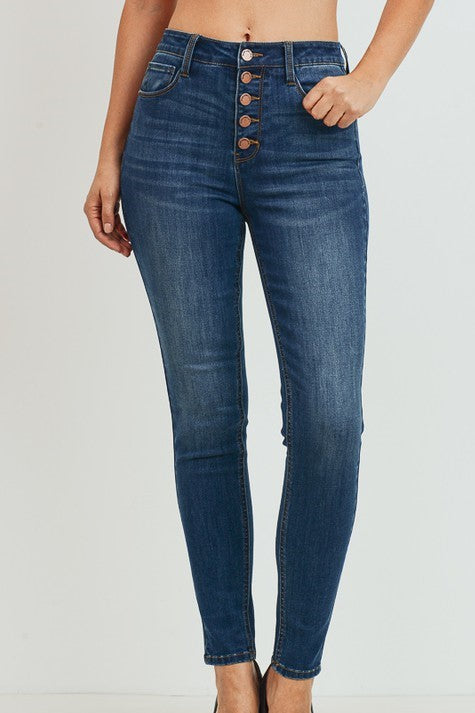 Charleston High Rise Button Jeans