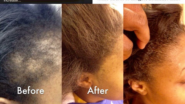 Stimulating Hair Growth System - divabycindy
