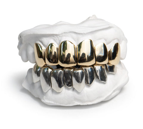 'Grillz'  14k Solid Gold Custom Fit