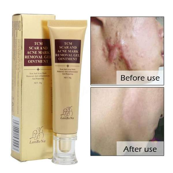 Scar And Acne Mark Removal Gel Ointment