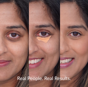 Woman wearing Vasanti Liquid VO2 Dark Circle Eraser - Before and after comparison