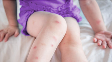 Bed Bug Bites on Kids: What to Do