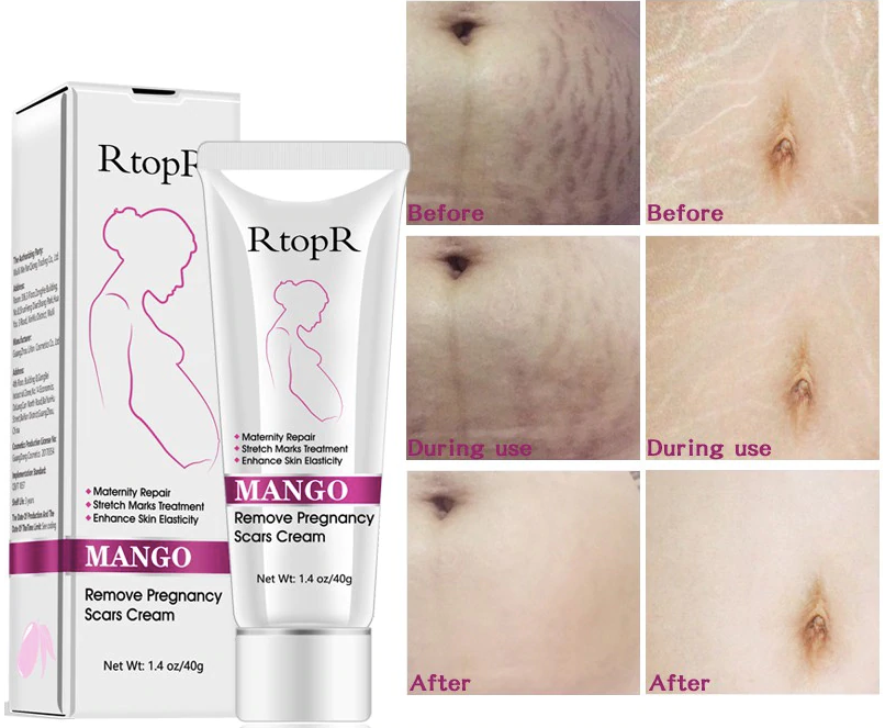Miracle Stretch Mark Cream