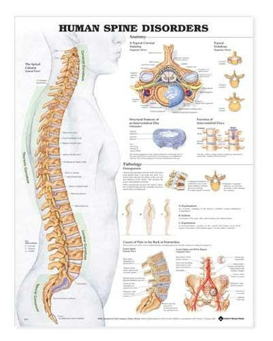 Picture of Human Spine Disorders Anatomical Chart  20  x 26