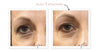 INSTANT EYE LIFT ($98 value)