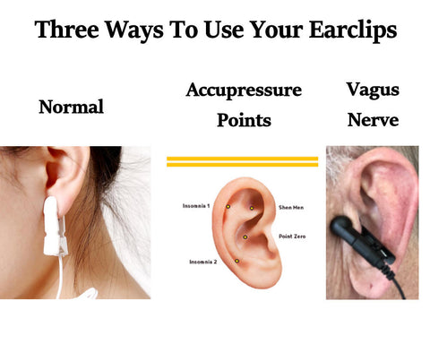 Where to put CES clips to stimulate acupressure points and to stimulate Vagus Nerve zenofsleep.com