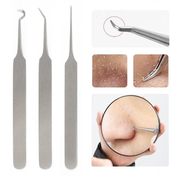 1PC Blackhead Tweezers Comedone Acne Remover