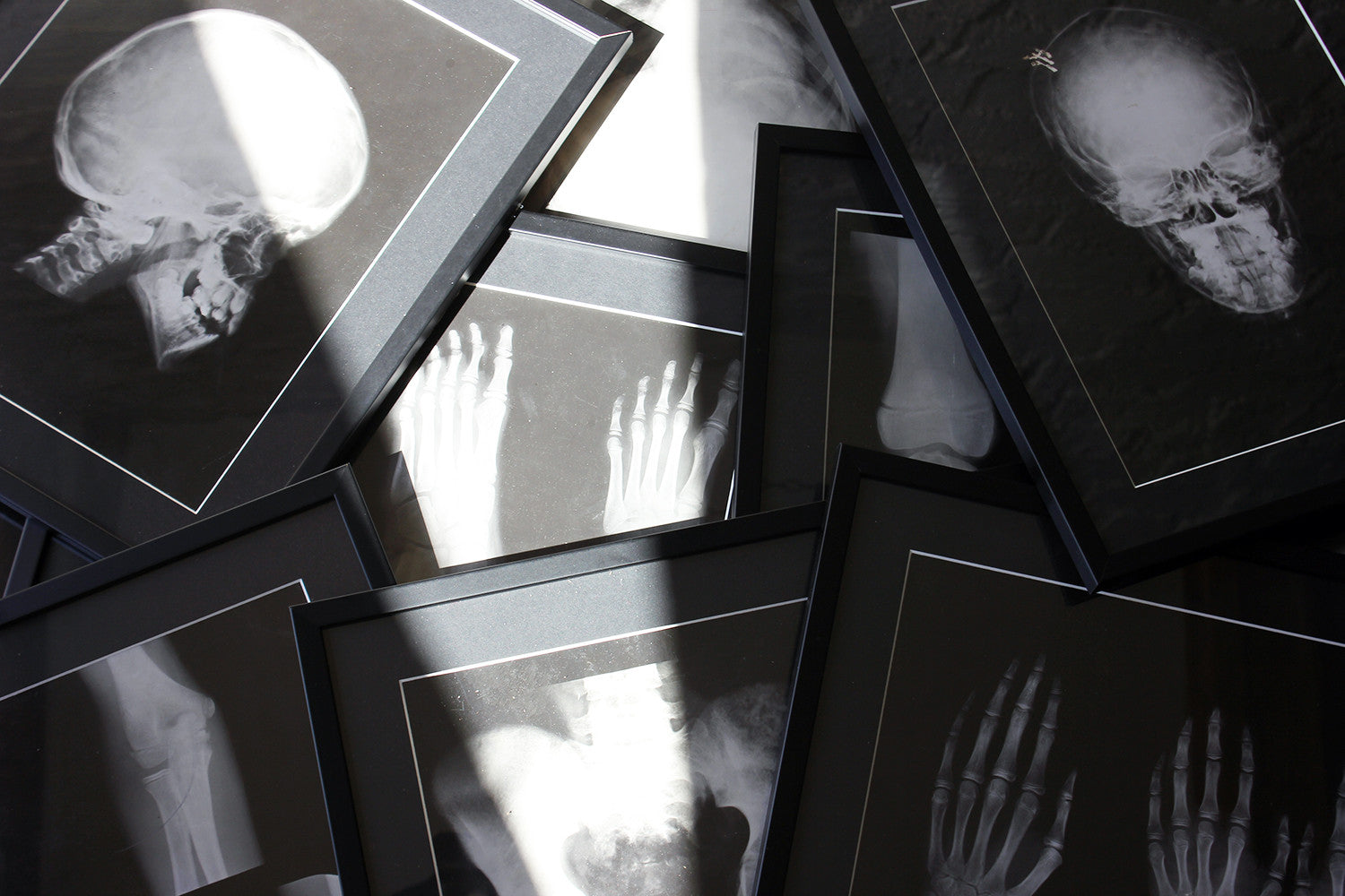 A Striking Group of Nine Framed Mid-Century Medical X-Ray Imaging Teaching Aids c.1950-60