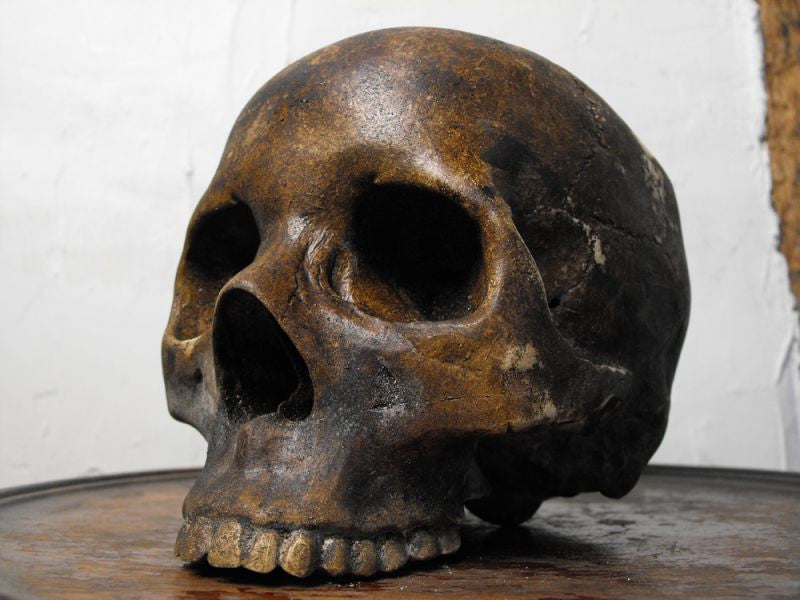 A Macabre 19thC Plaster Human Skull for Medical Use