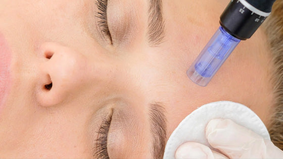 Microneedling for Optimal Skin Health