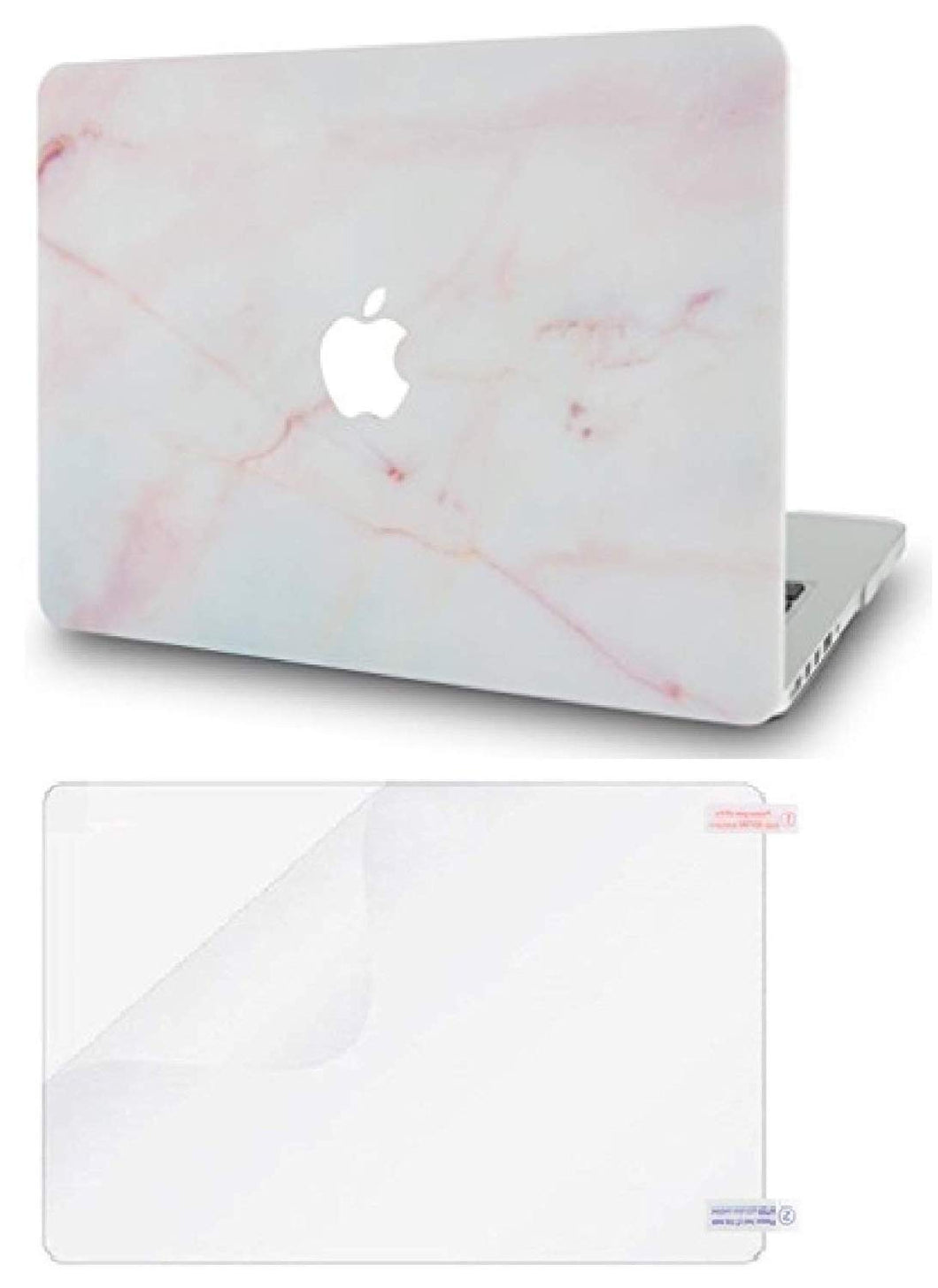 Macbook Case Bundle - Marble Collection - Pink Marble with Screen Protector