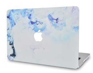 Macbook Case - Marble Collection - Blue Cloud Marble