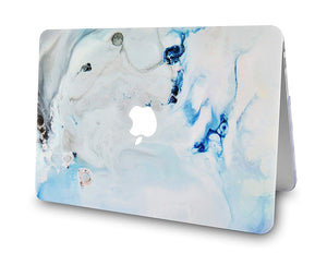 Macbook Case - Marble Collection - Blue Marble 3