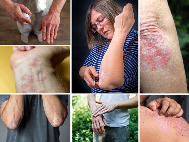 7 Types Of Psoriasis: Symptoms and Pictures