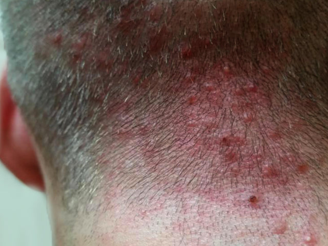 What Does Scalp Folliculitis Look Like?