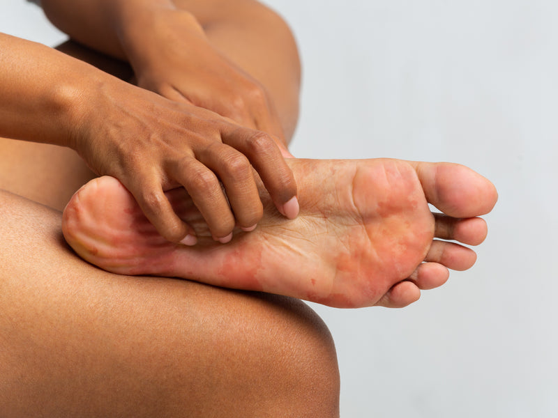 How To Soothe Diabetic Itchy Feet Balmonds