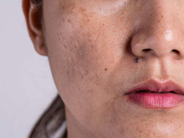 What Causes Post-Inflammatory Hyperpigmentation?