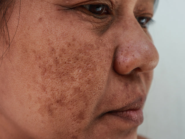 Is There A Natural Treatment For Post-Inflammatory Hyperpigmentation That Actually Works?