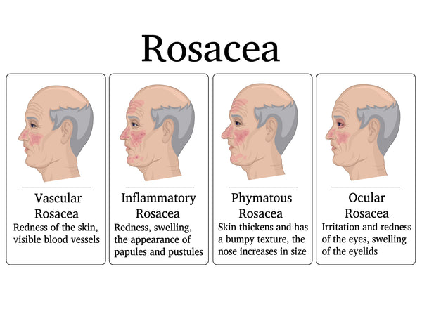 four types of rosacea