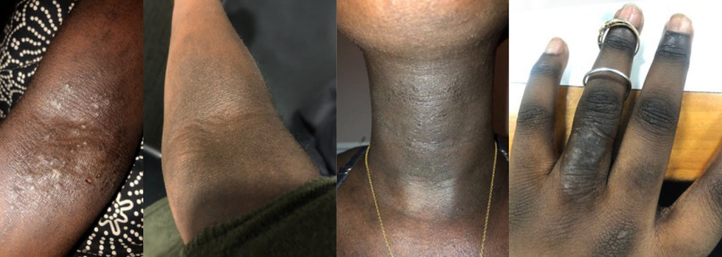 Can steroids cause skin discoloration ripped 50 steroid