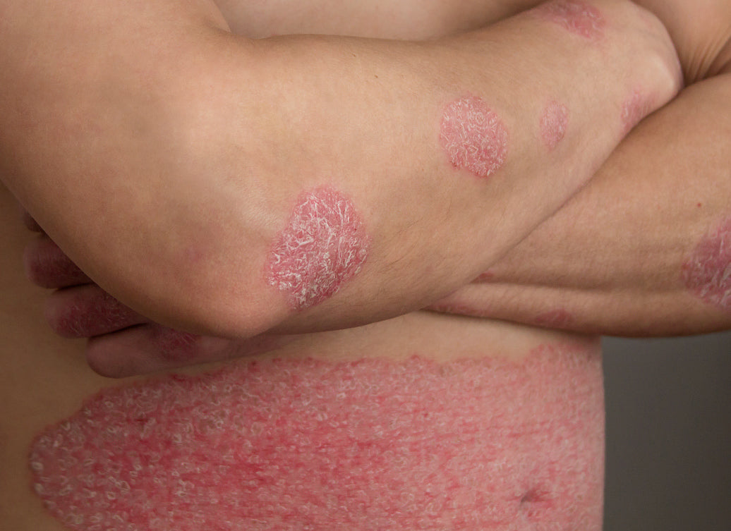 Does Psoriasis Have A Smell?
