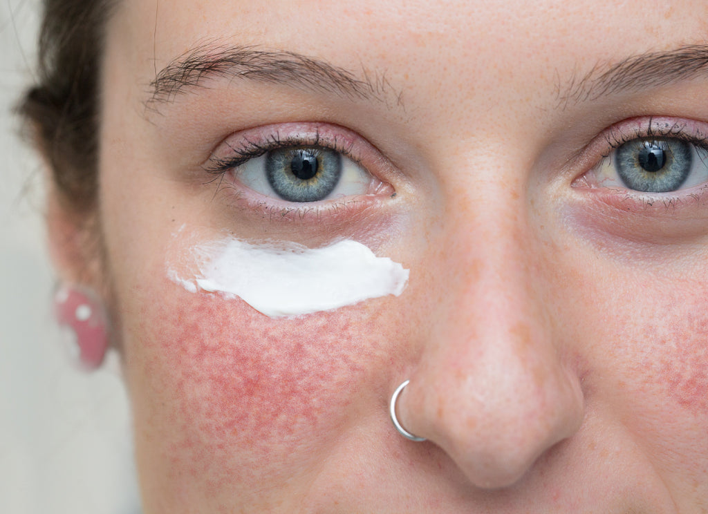 Does Rosacea Ever Go Away?
