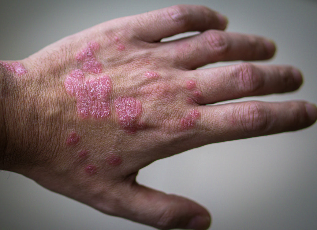 is psoriasis a disability in canada)