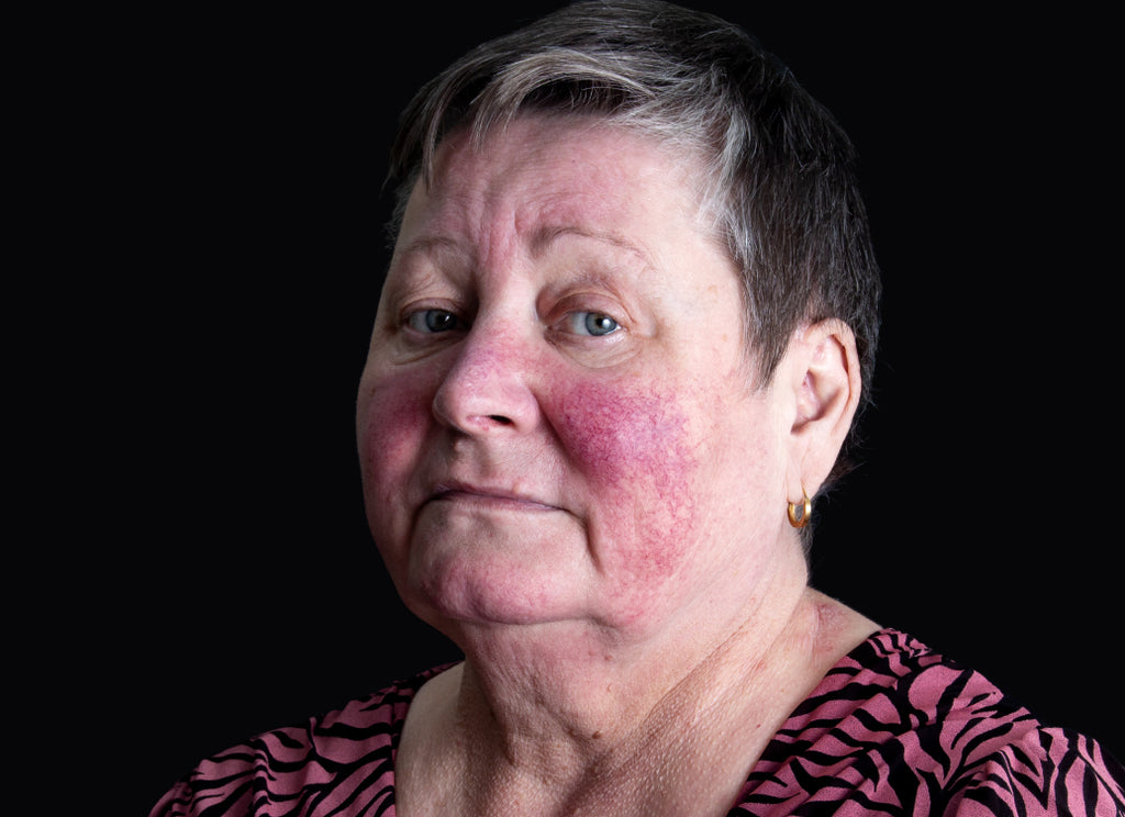 How Serious Is Rosacea?