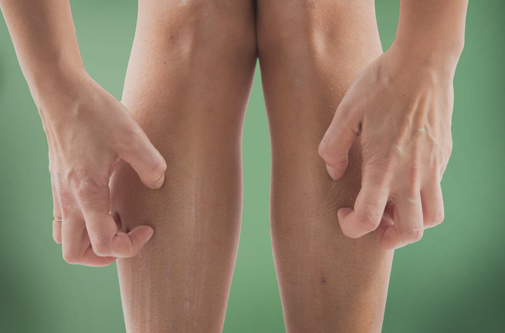 6 common causes of itcy lower legs