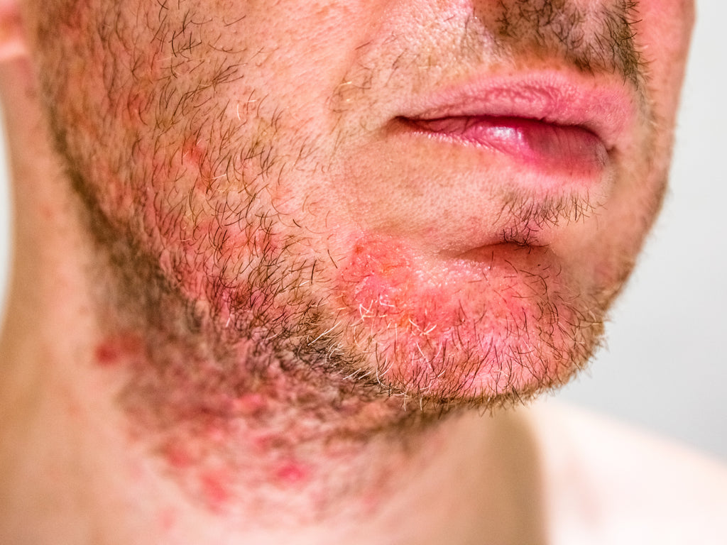 Seborrheic dermatitis on the chin