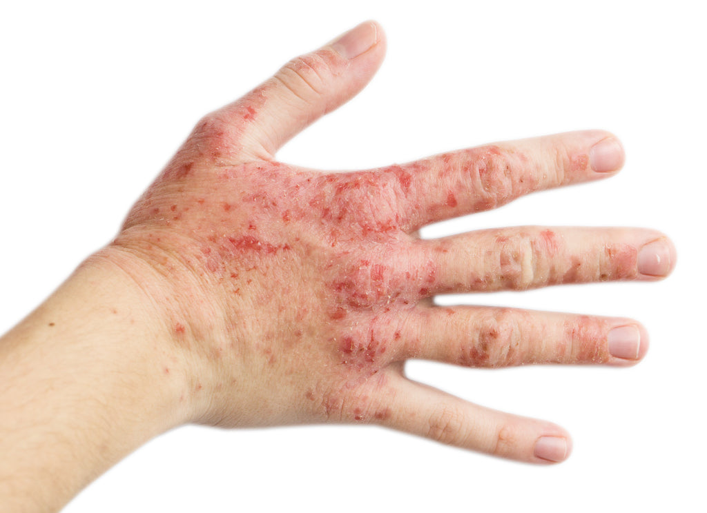 What's The Main Cause Of Eczema?