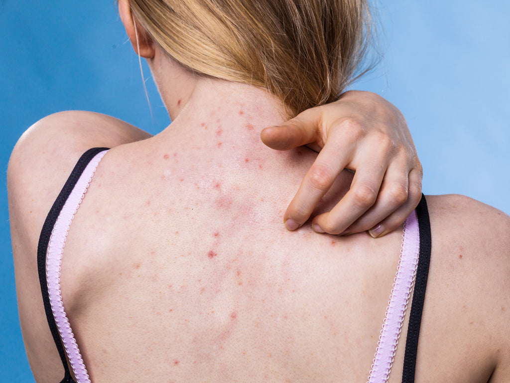 Can Acne Look Like A Rash?